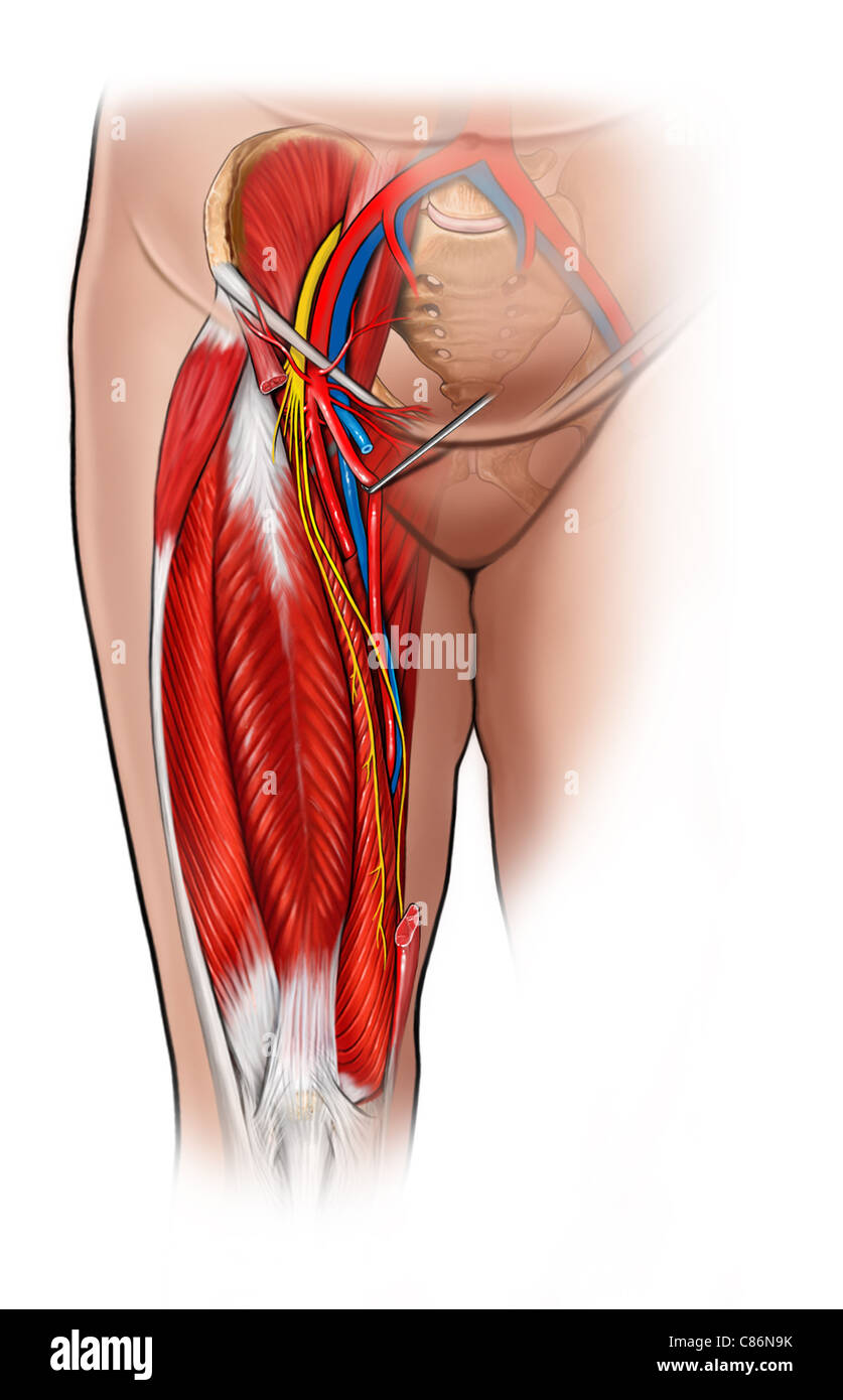 Groin Inguinal Anatomy Sartorius Muscle Cut Stock Photo