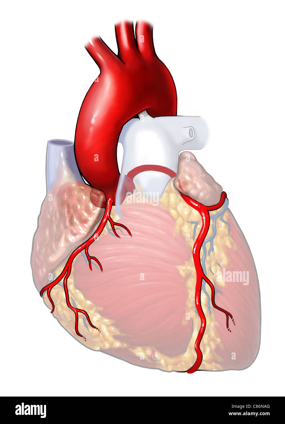 Heart with Stenosis of Aortic Root Stock Photo: 39486456 - Alamy