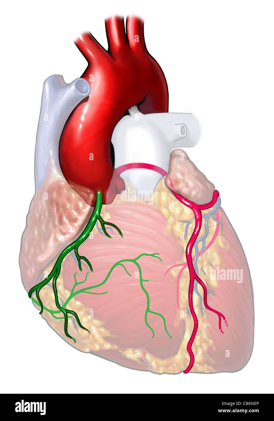Normal Coronary Arteries Stock Photo: 39486574 - Alamy