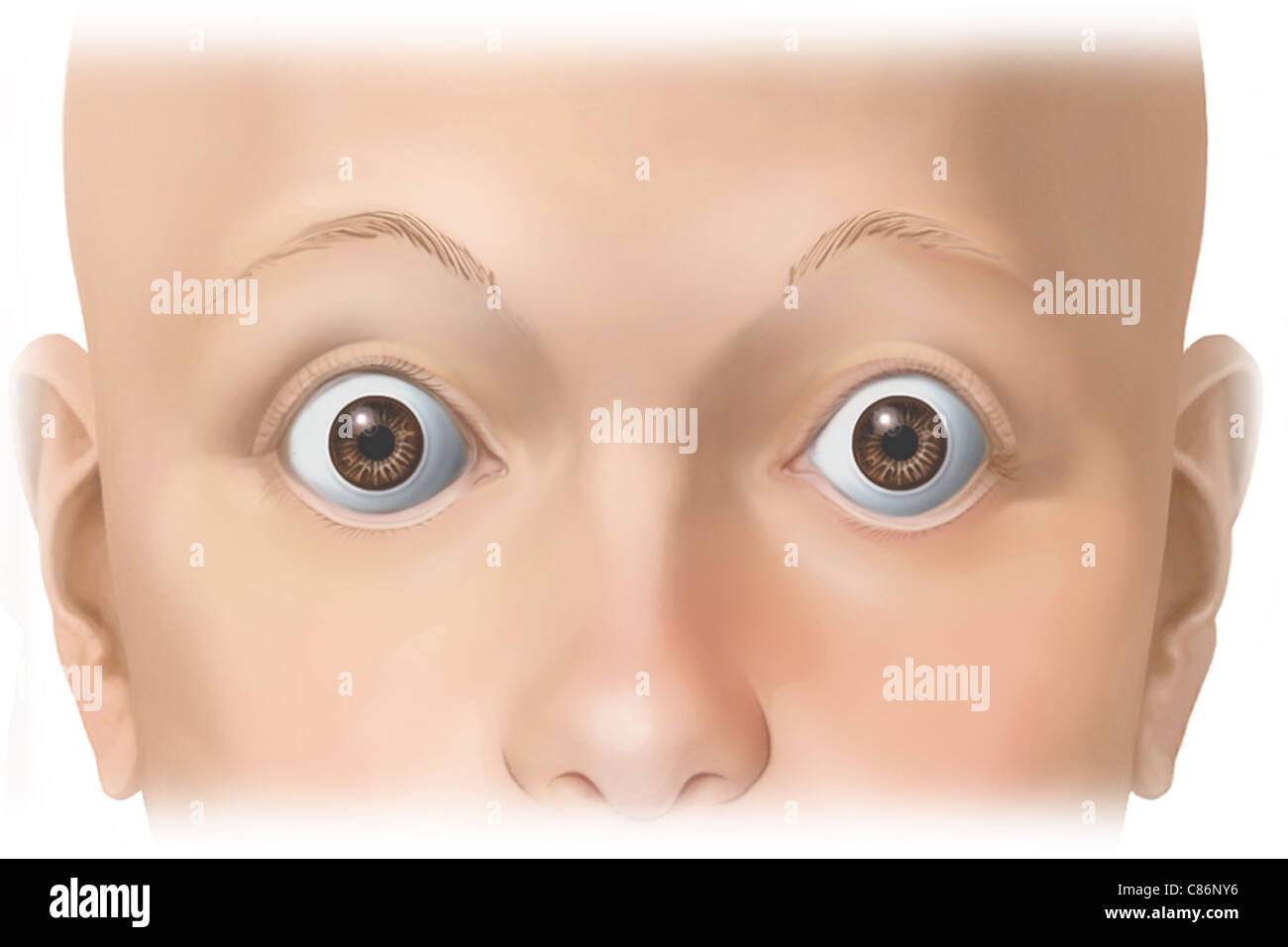 This stock medical image features an anterior (front) view of a female face with eyes wide open to expose the conjunctiva. - Stock Image