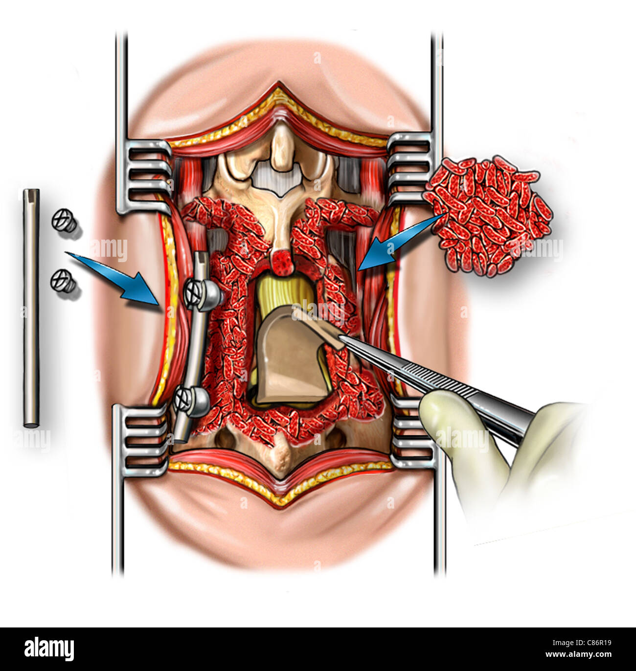 Posterior Lumbar Fusion Of L4-5 And L5-s1 Stock Photo