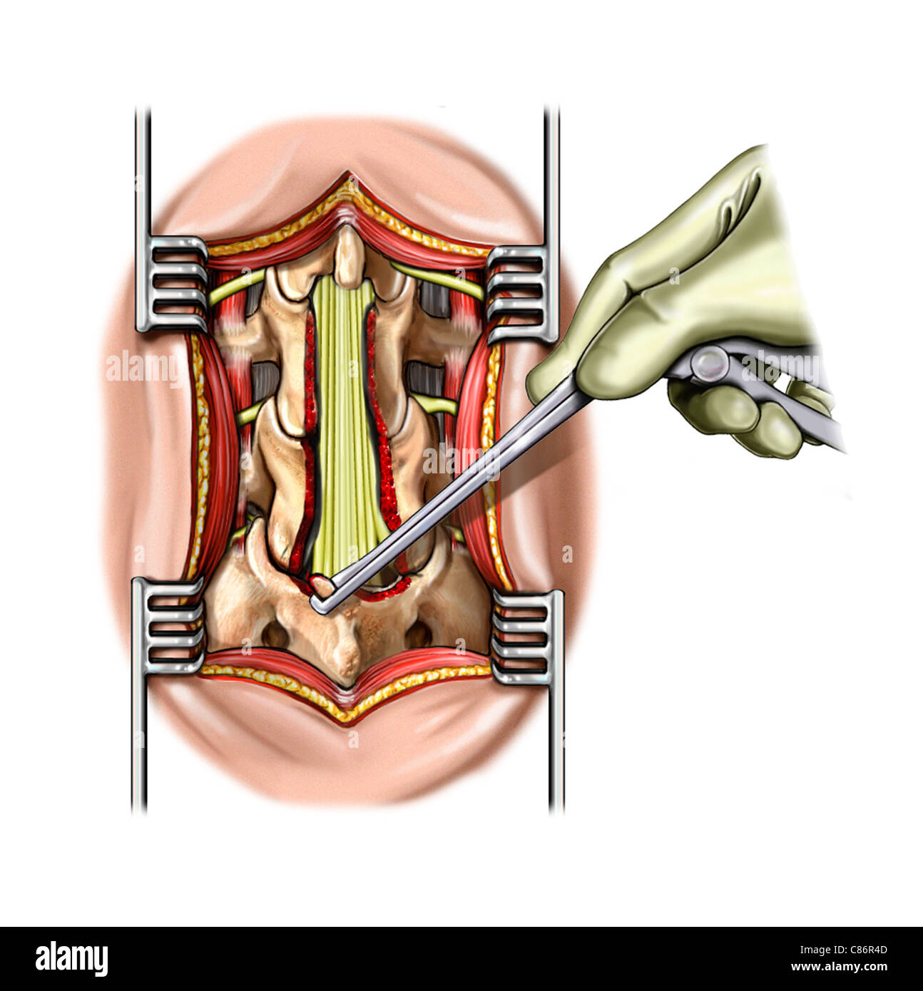 L4 and L5 Laminectomy Stock Photo