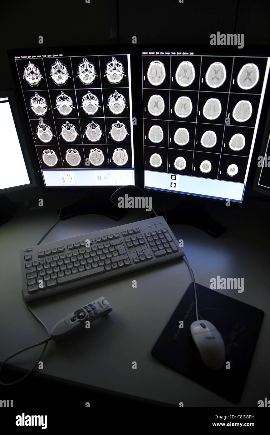 CT brain scan on computer screens - Stock Image