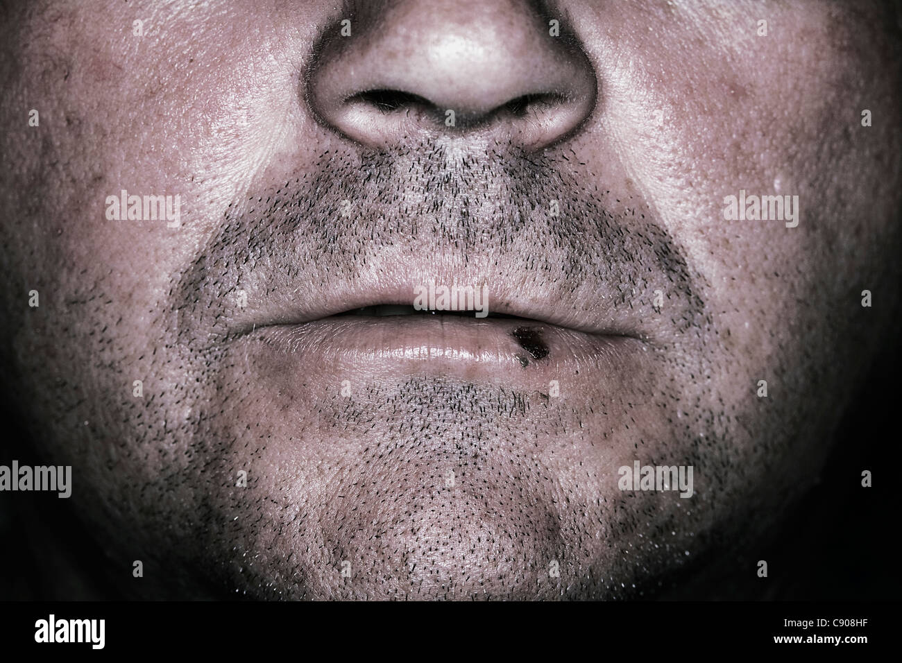 unshaved man with lip scar/scab - Stock Image