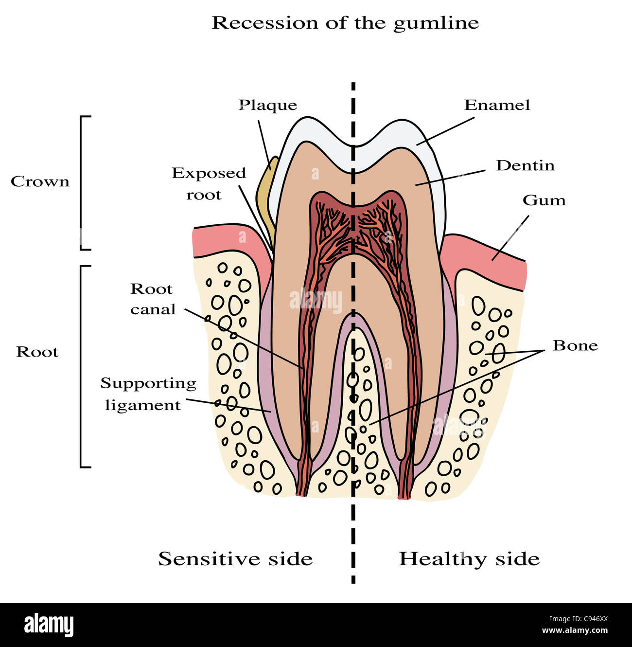 Human tooth anatomy illustration - recession of the gumline Stock ...