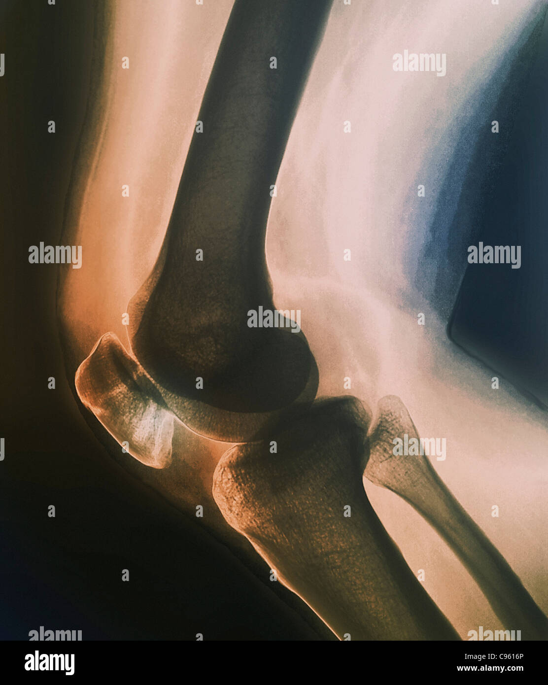 Broken knee. Coloured X-ray of the knee of a 38 year old patient with a fractured patella (kneecap). Stock Photo