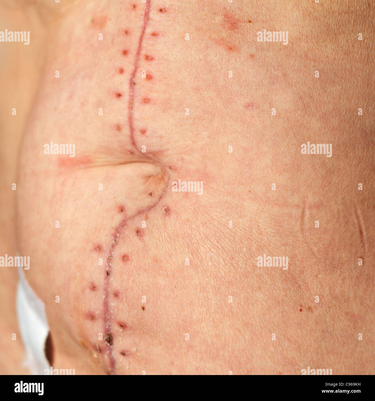 Laparotomy incision scar 2 weeks after opreration - Stock Image