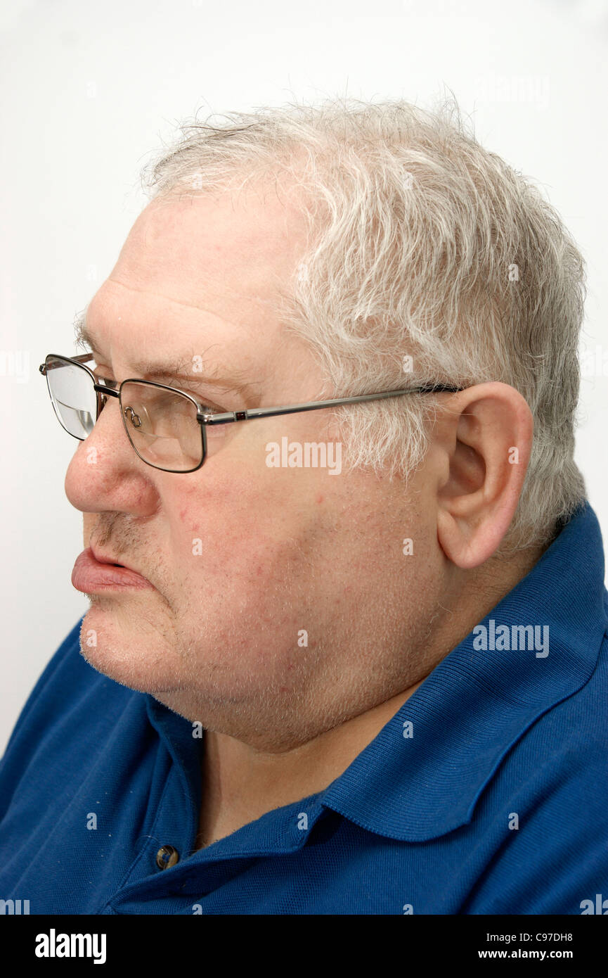 Elderly man suffering from Bell's Palsy Stock Photo