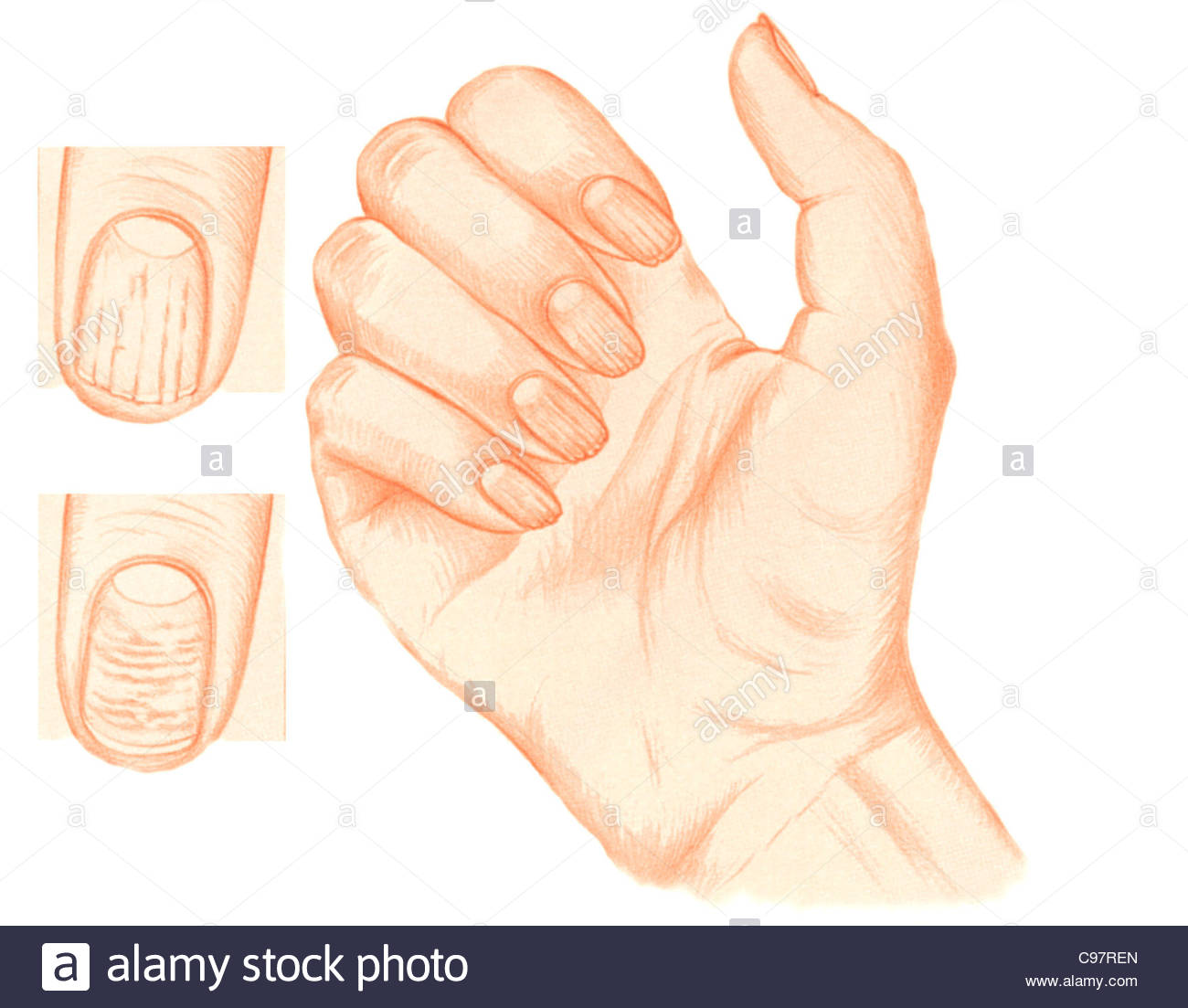 Damage To Fingernail Stock Photos Damage To Fingernail Stock
