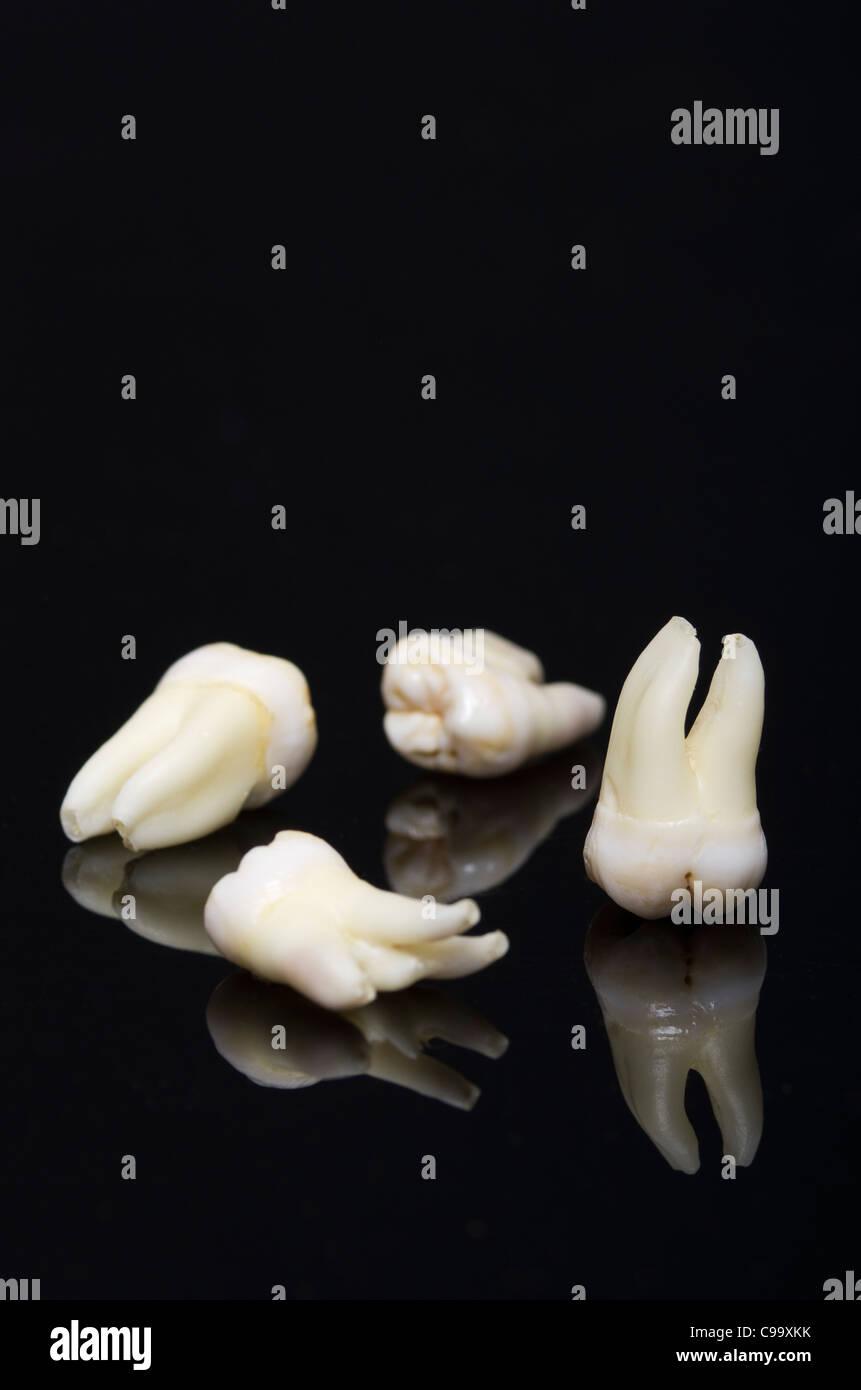 Wisdom tooth on black background - Stock Image