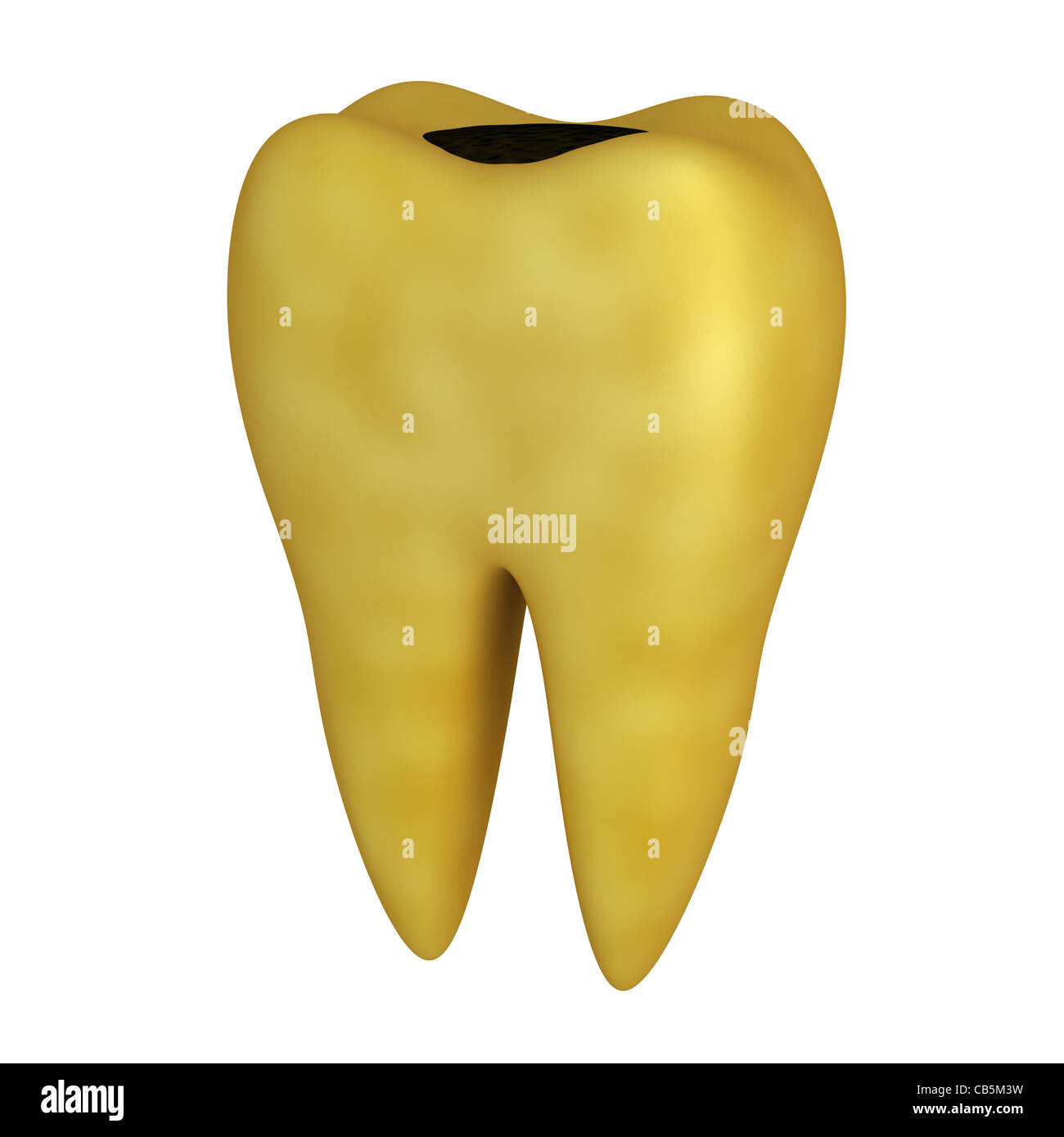 Bad human Tooth (done in 3d, isolated) - Stock Image
