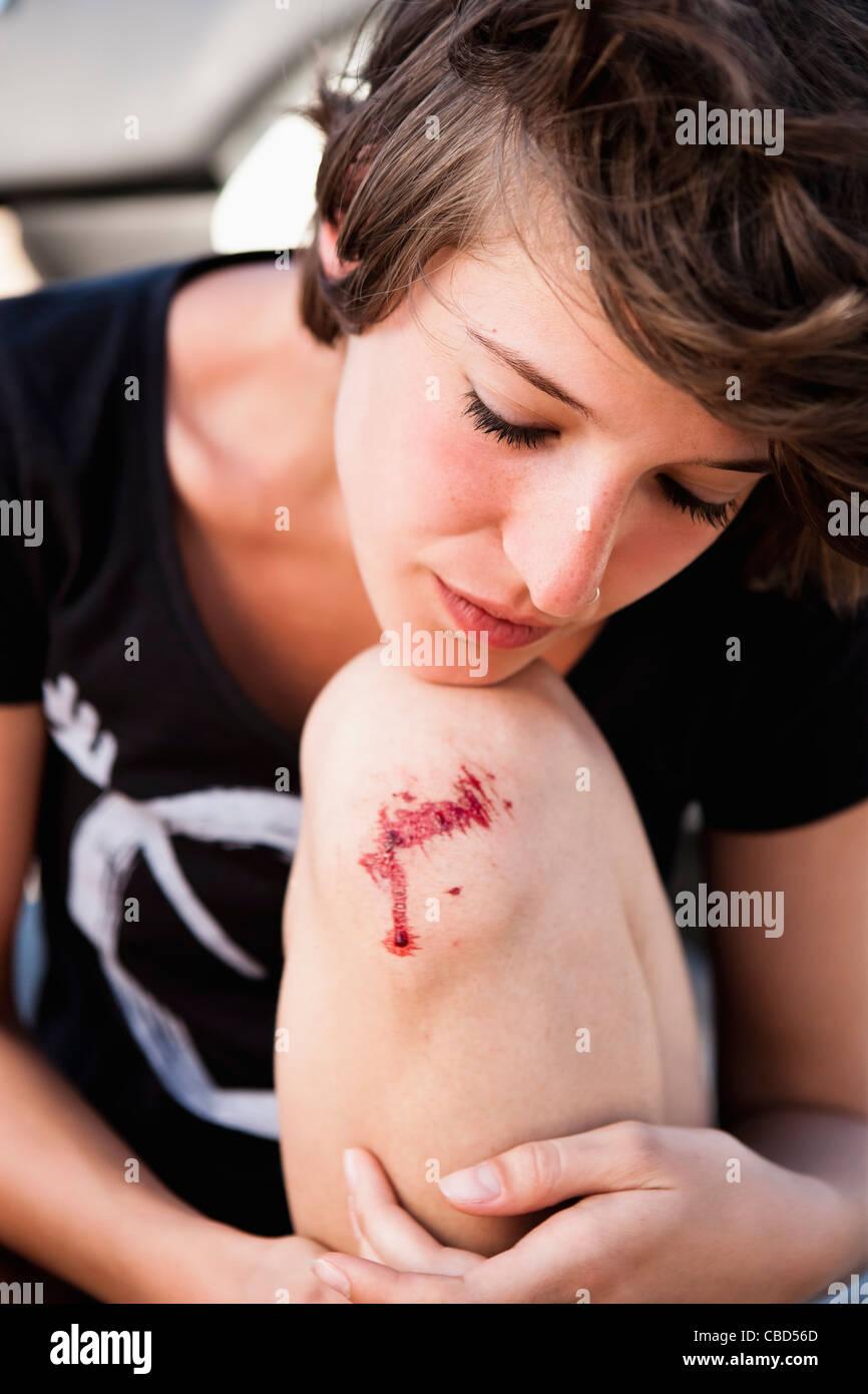 Woman examining scraped knee - Stock Image