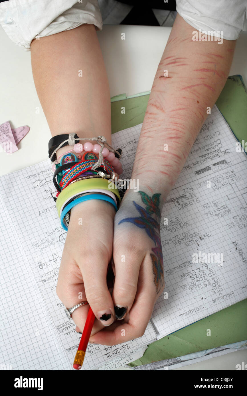 image of self harm, Cuts to the arm - Stock Image