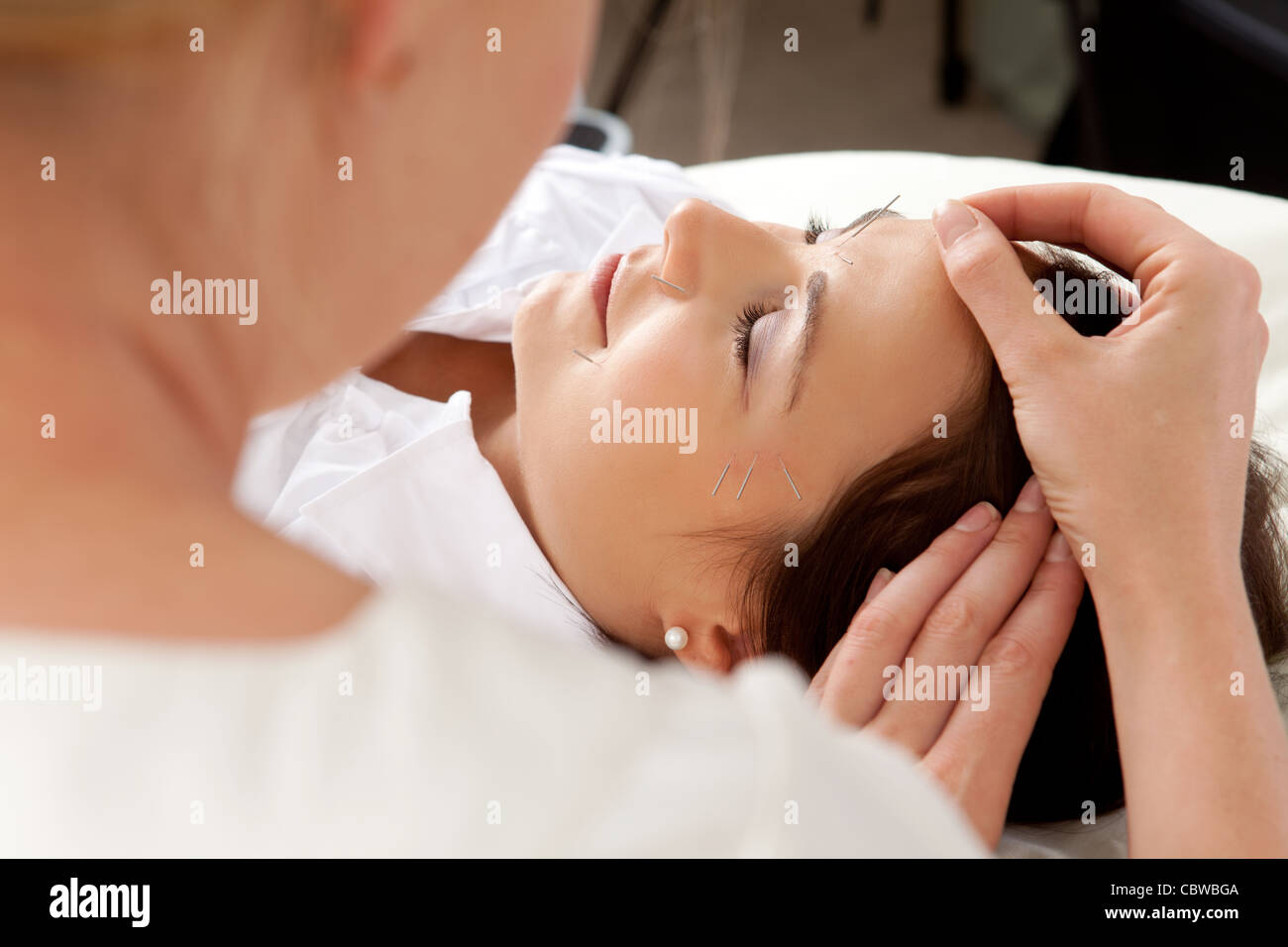 Over the shoulder shot of professional acupuncturist placing needle in face of patient - Stock Image