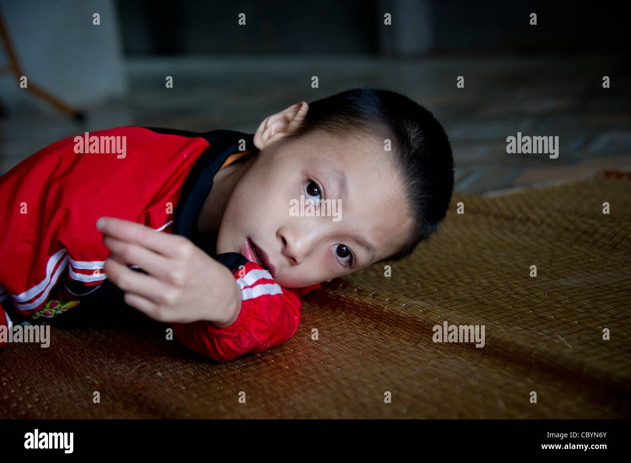 Young Vietnamese boy diagnosed as Cerebral Palsy (CP) patient, the result of a loss of oxygen immediately before - Stock Image