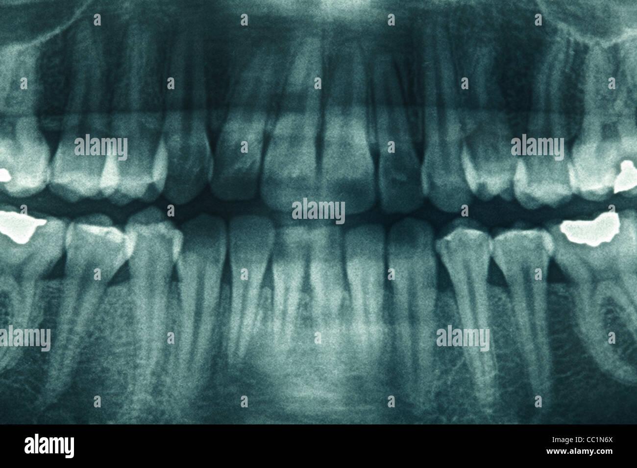 Dental xray - Stock Image
