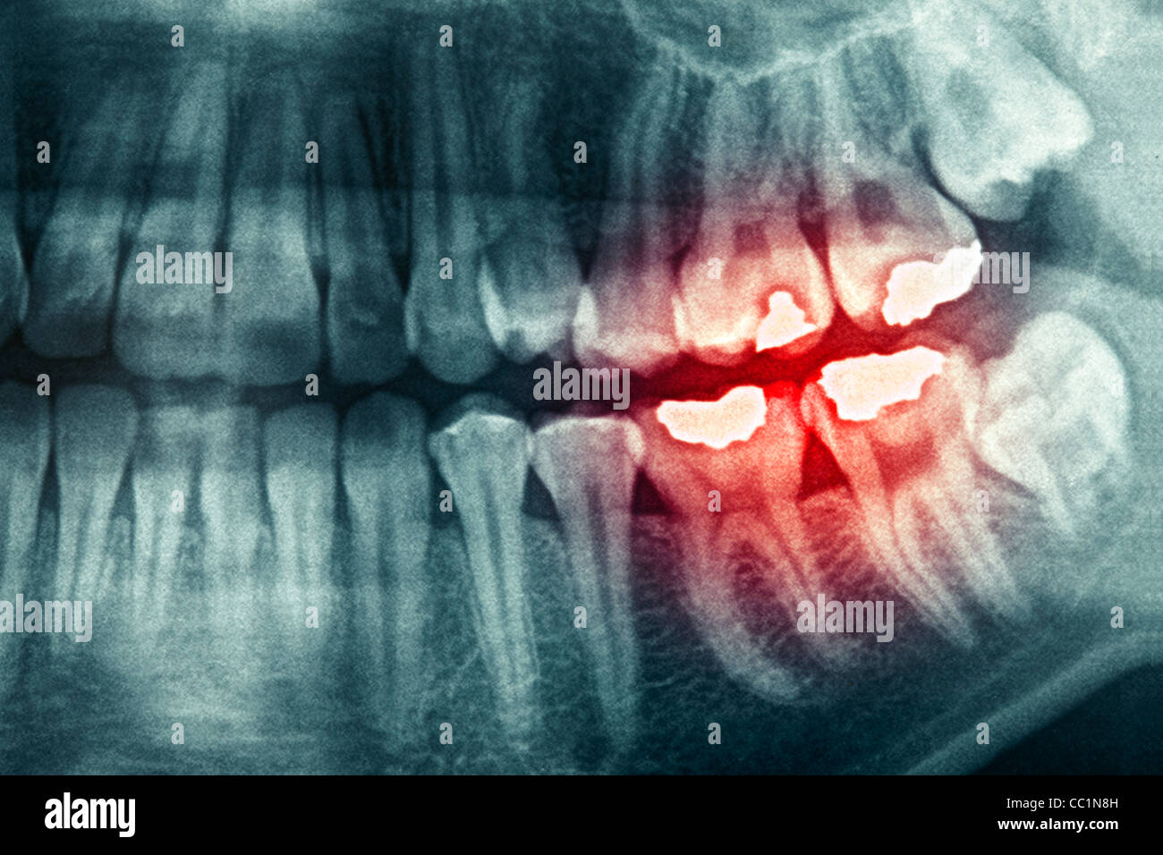 Dental xray with red painful area - Stock Image