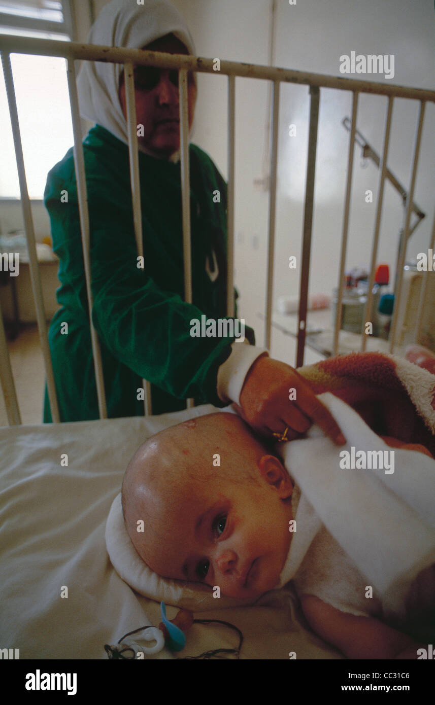 The hospital at Sirte, where a baby with arrested hydrocephalus gets attention despite sanctions against Libya - Stock Image