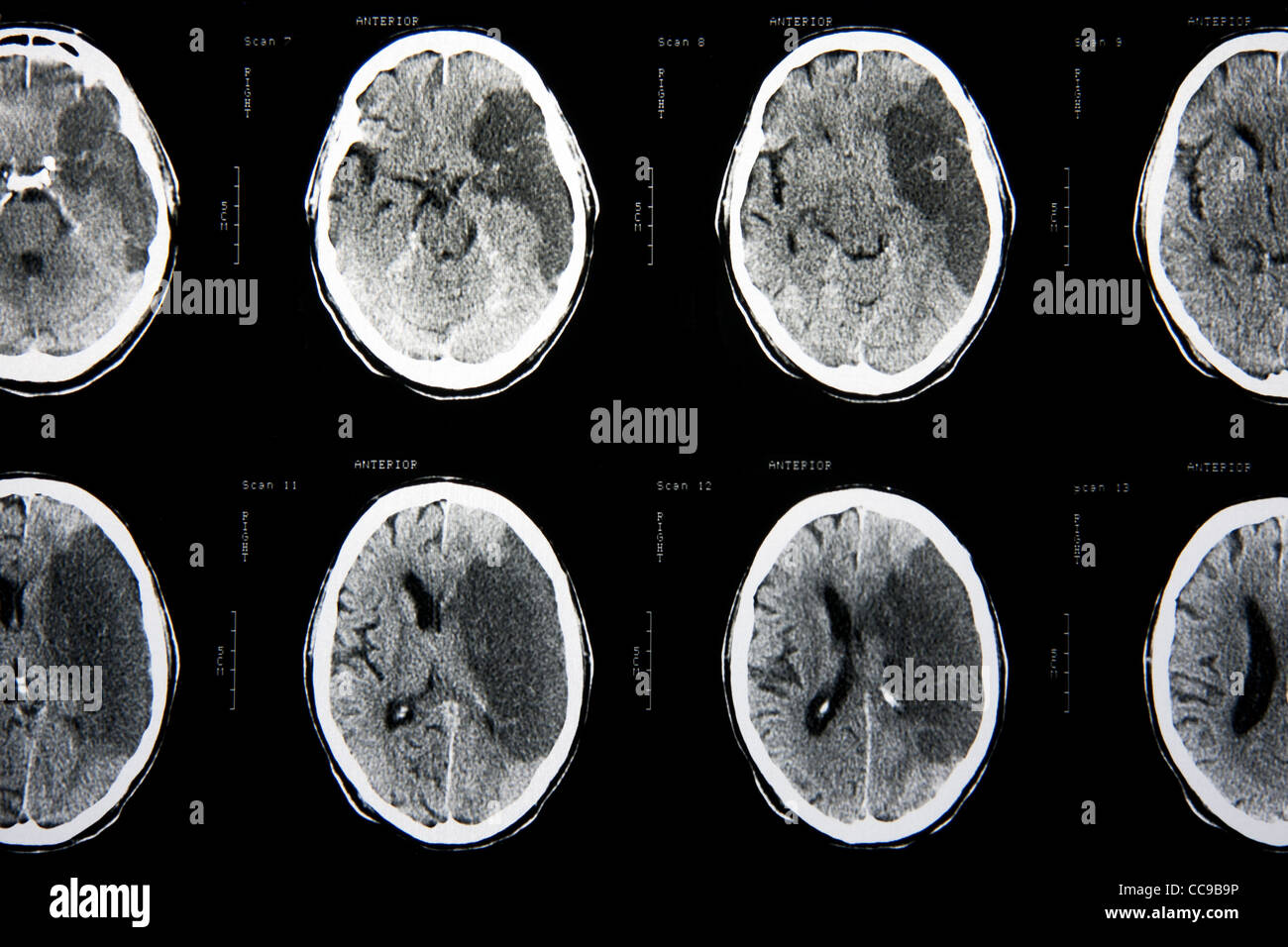 Cat scan of the brain - Stock Image