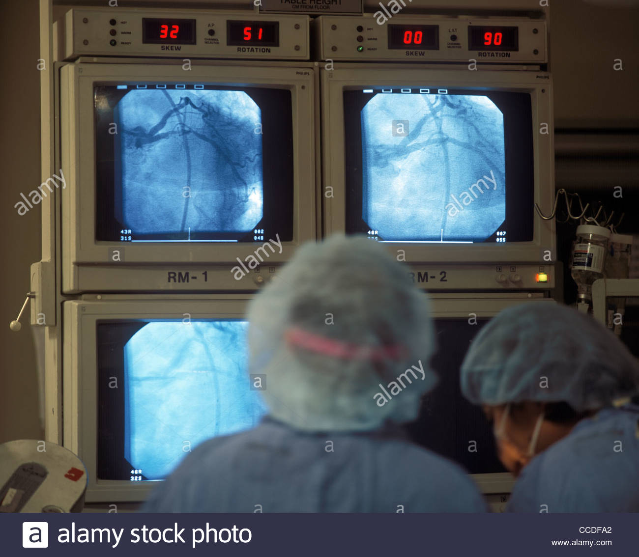 A medical procedure and doctors and physicians in a cardiac cath lab performing a procedure. - Stock Image