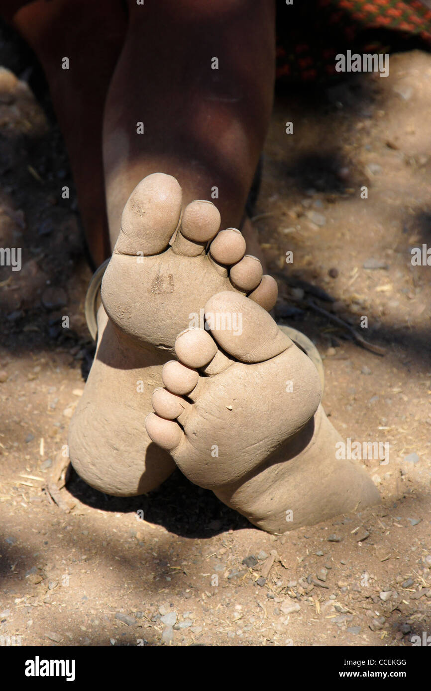 Tough and dirty bare feet (Himba woman in Namibia) - Stock Image