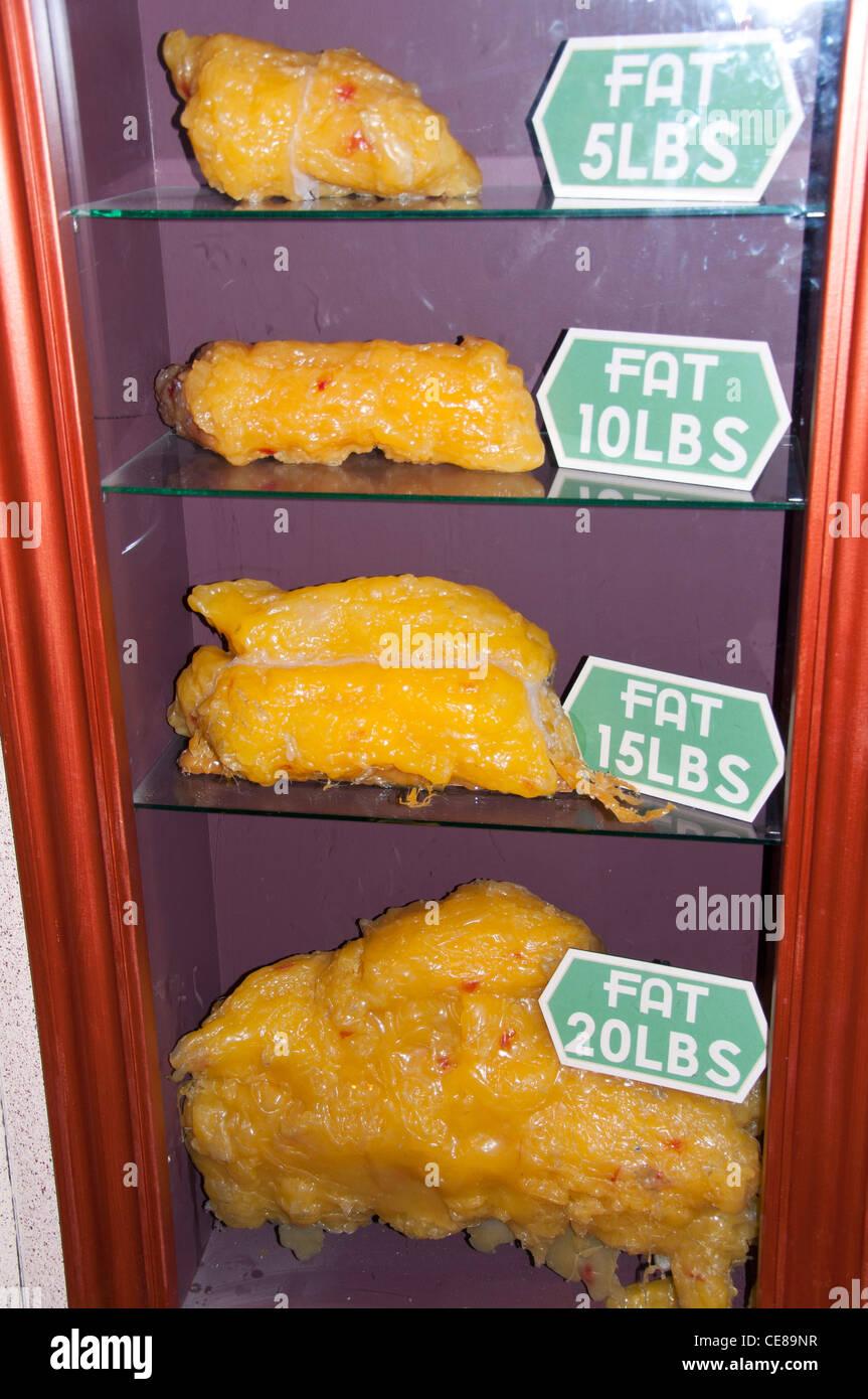 Body Fat Comparison Stock Photo: 43209203 - Alamy