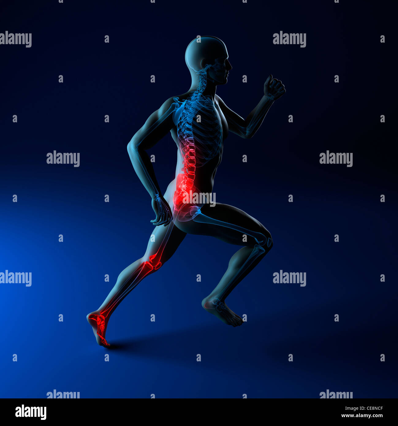 Running injuries, conceptual computer artwork. - Stock Image