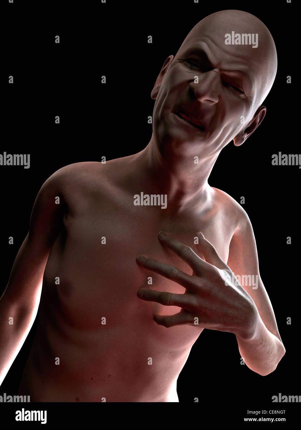 Heart attack, conceptual computer artwork. - Stock Image