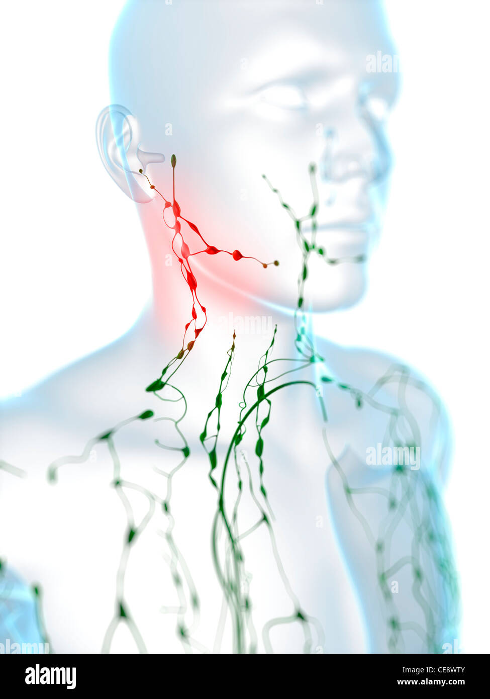 Swollen Lymph Nodes In The Neck Computer Artwork Stock Photo