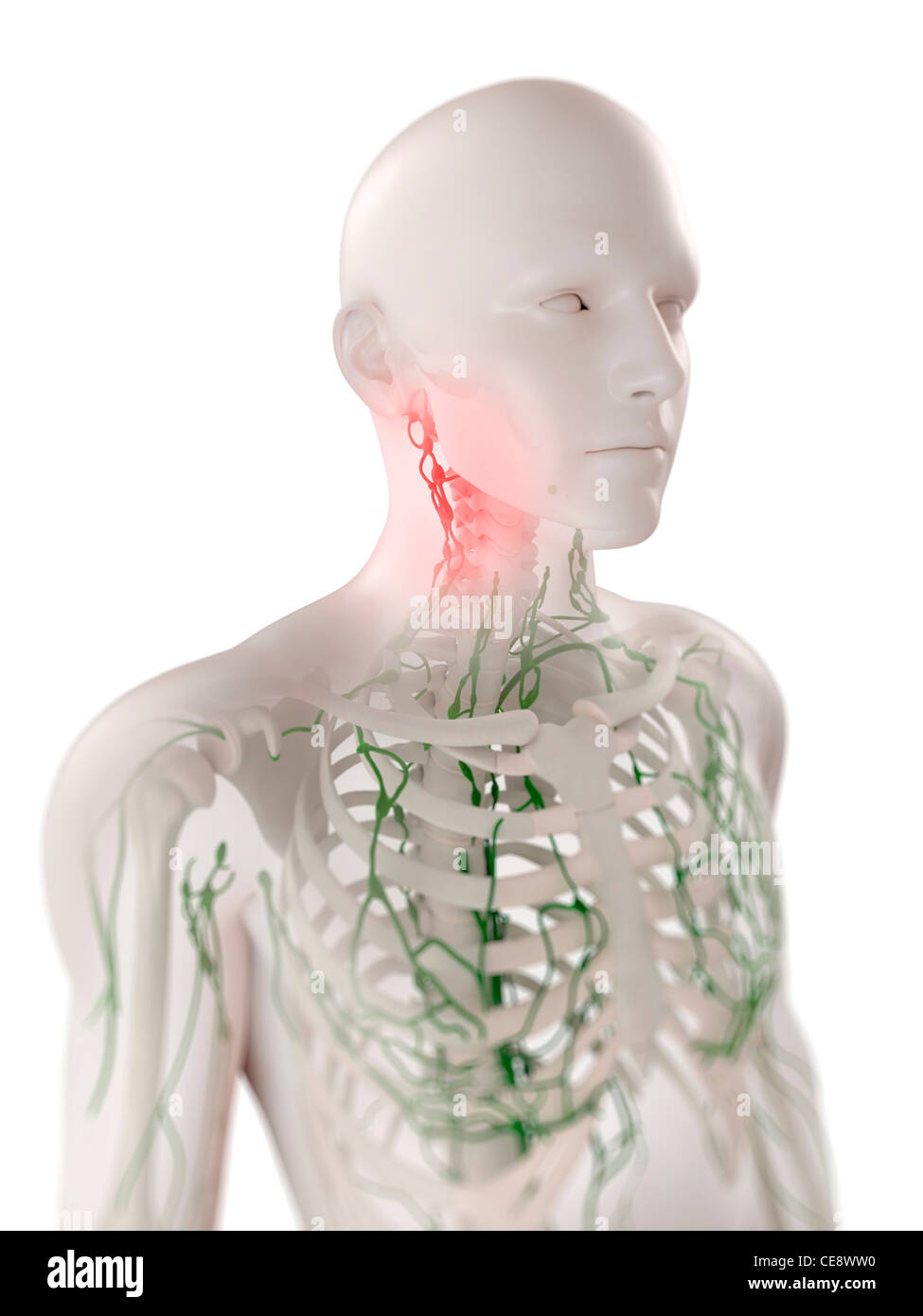 Why lymph nodes are inflamed