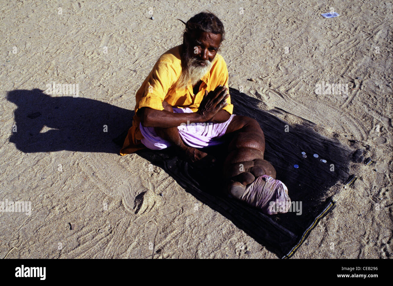 A mendicant with boated leg suffering from Elephantiasis disease begging in South India - Stock Image