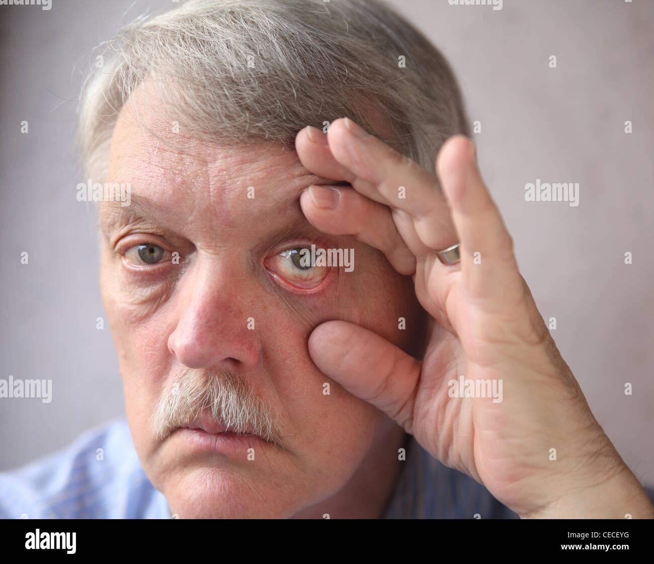 Bloodshot Eyes And Man Stock Photos Bloodshot Eyes And Man Stock