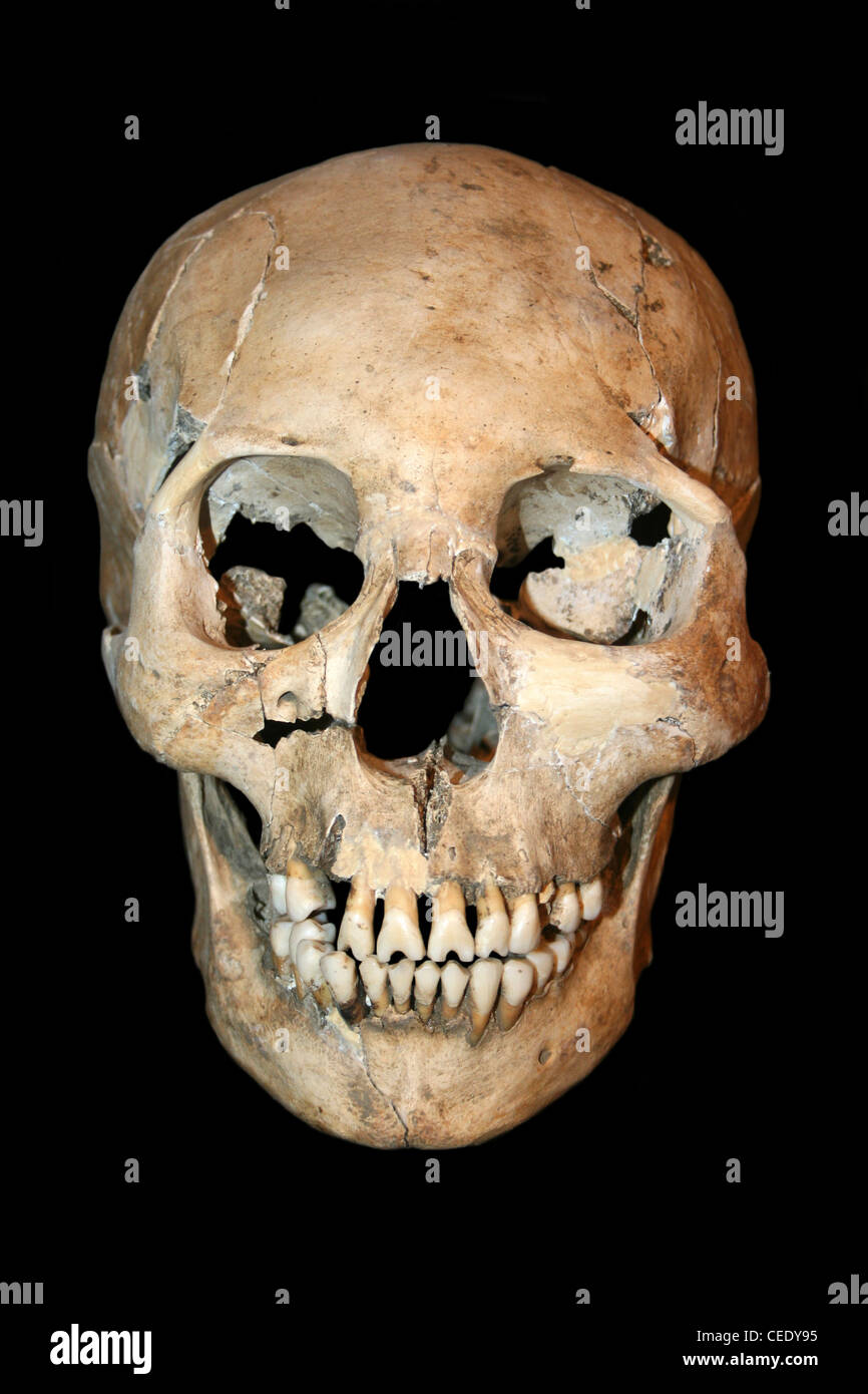 Frontal View Of Cranially Deformed Human Skull From Costa Rica - Stock Image