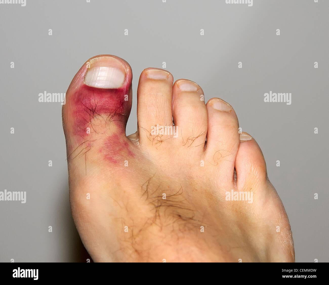 Bruised Toe Stock Photos & Bruised Toe Stock Images - Alamy