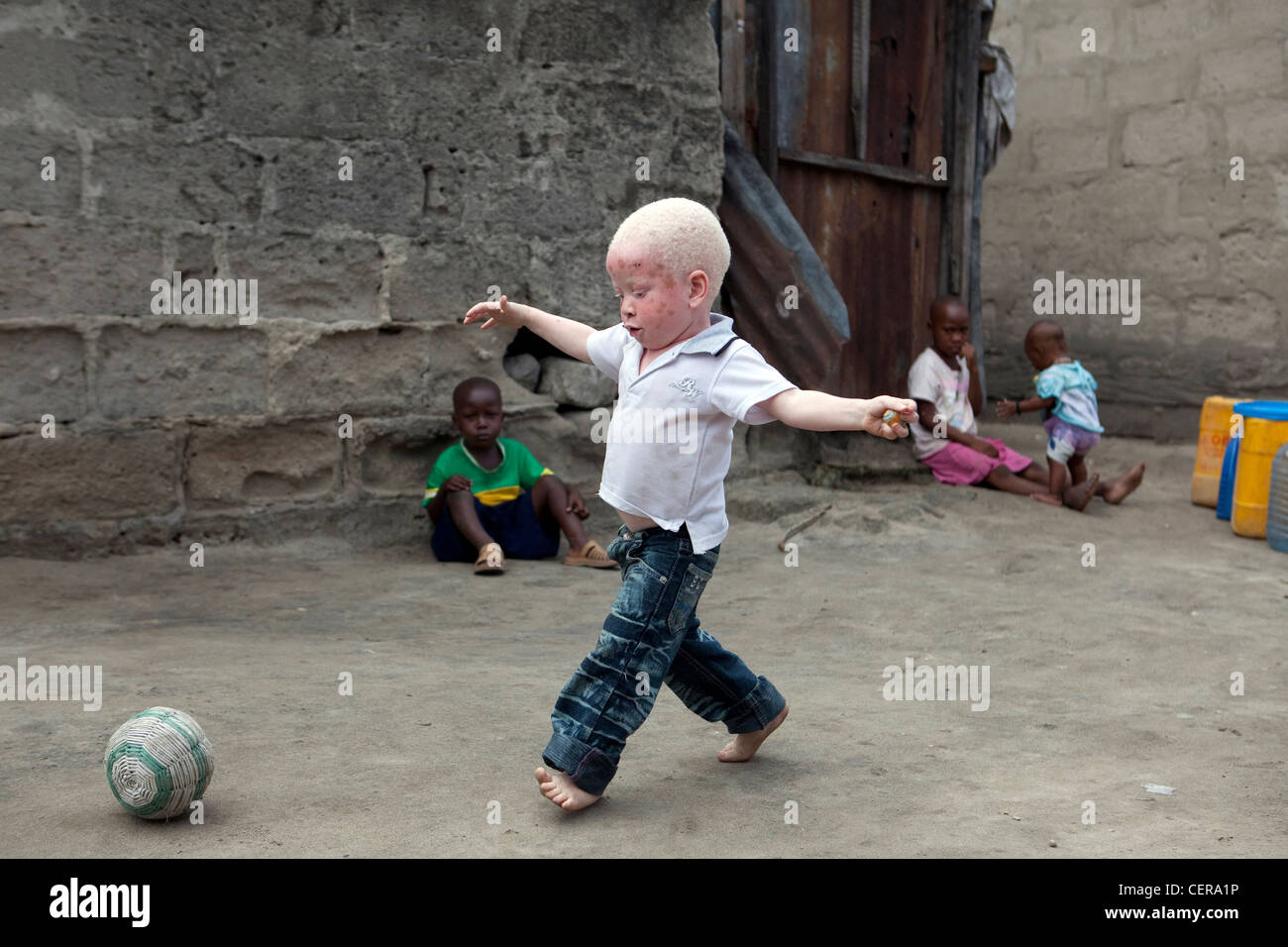 Albino children plays football in Tanzania Stock Photo
