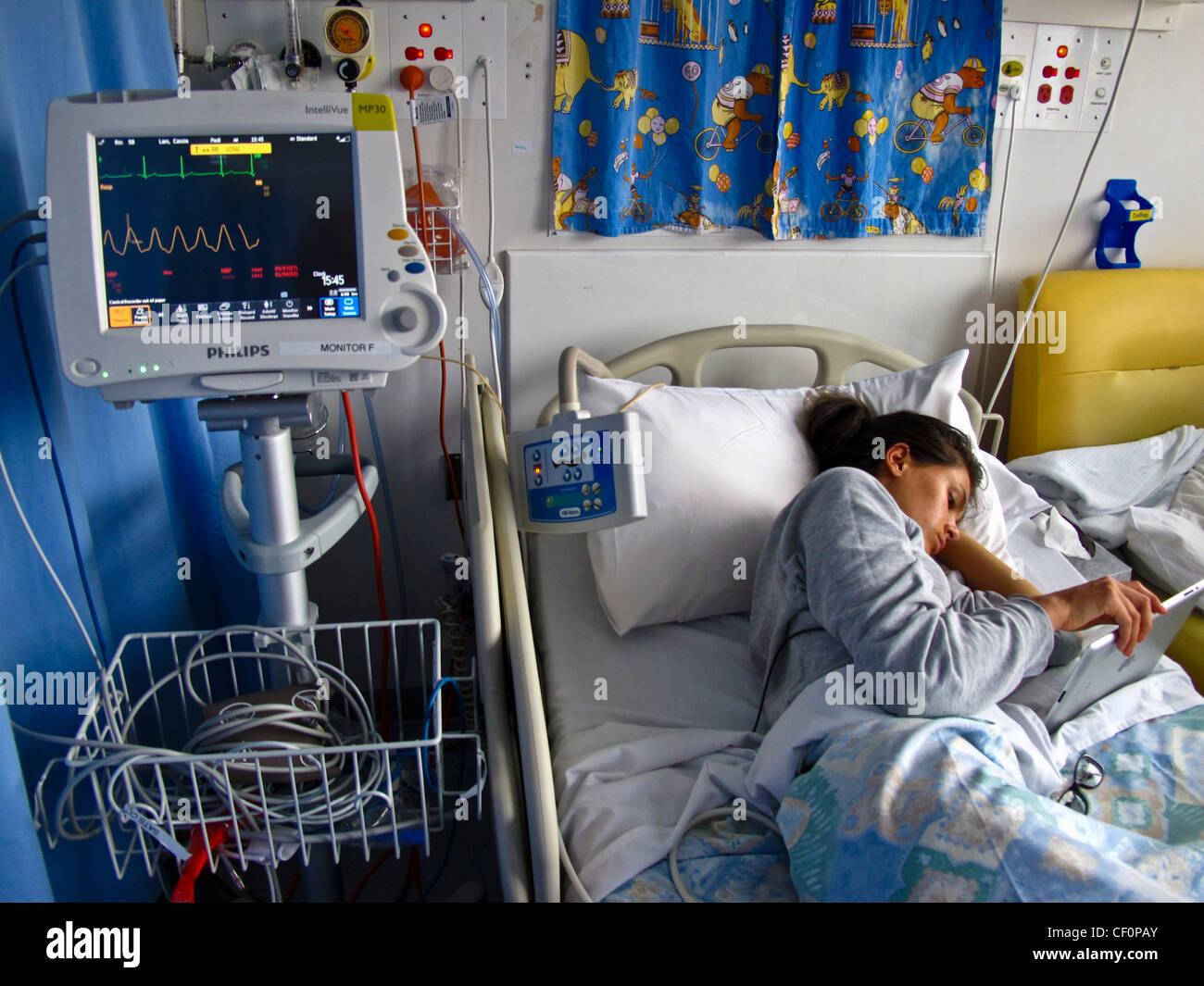 A young girl with anorexia nervosa is treated in hospital by being fed nutrients through a tube - Stock Image