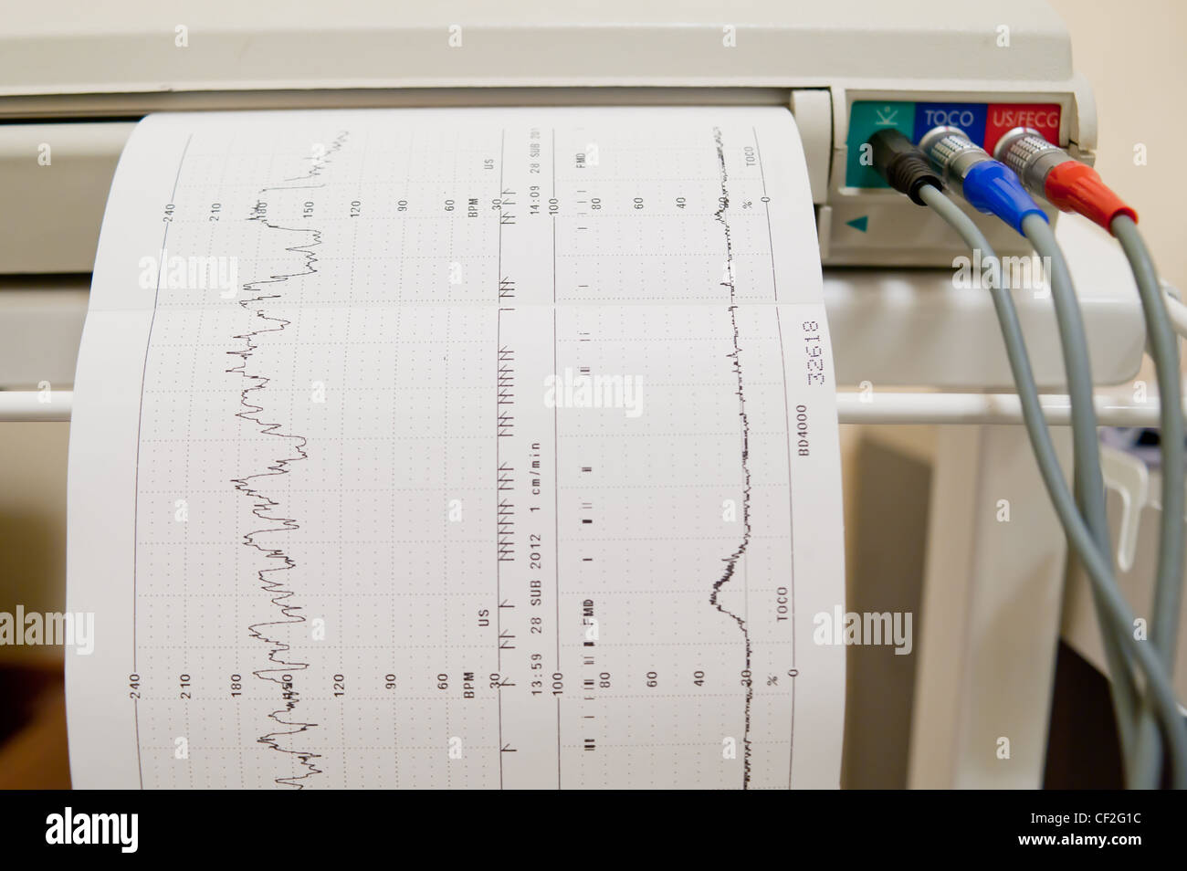 Cardiogram Ekg heart pulse results on the paper - Stock Image