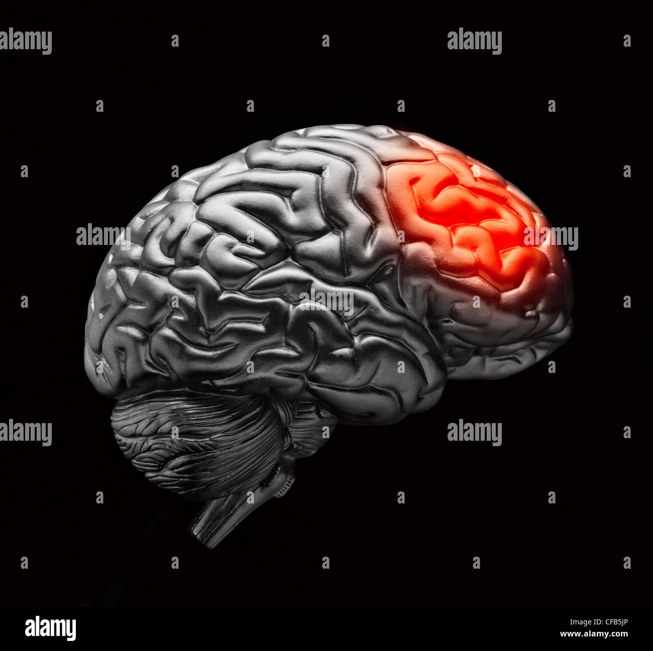 Brain with simulated headache pain Stock Photo