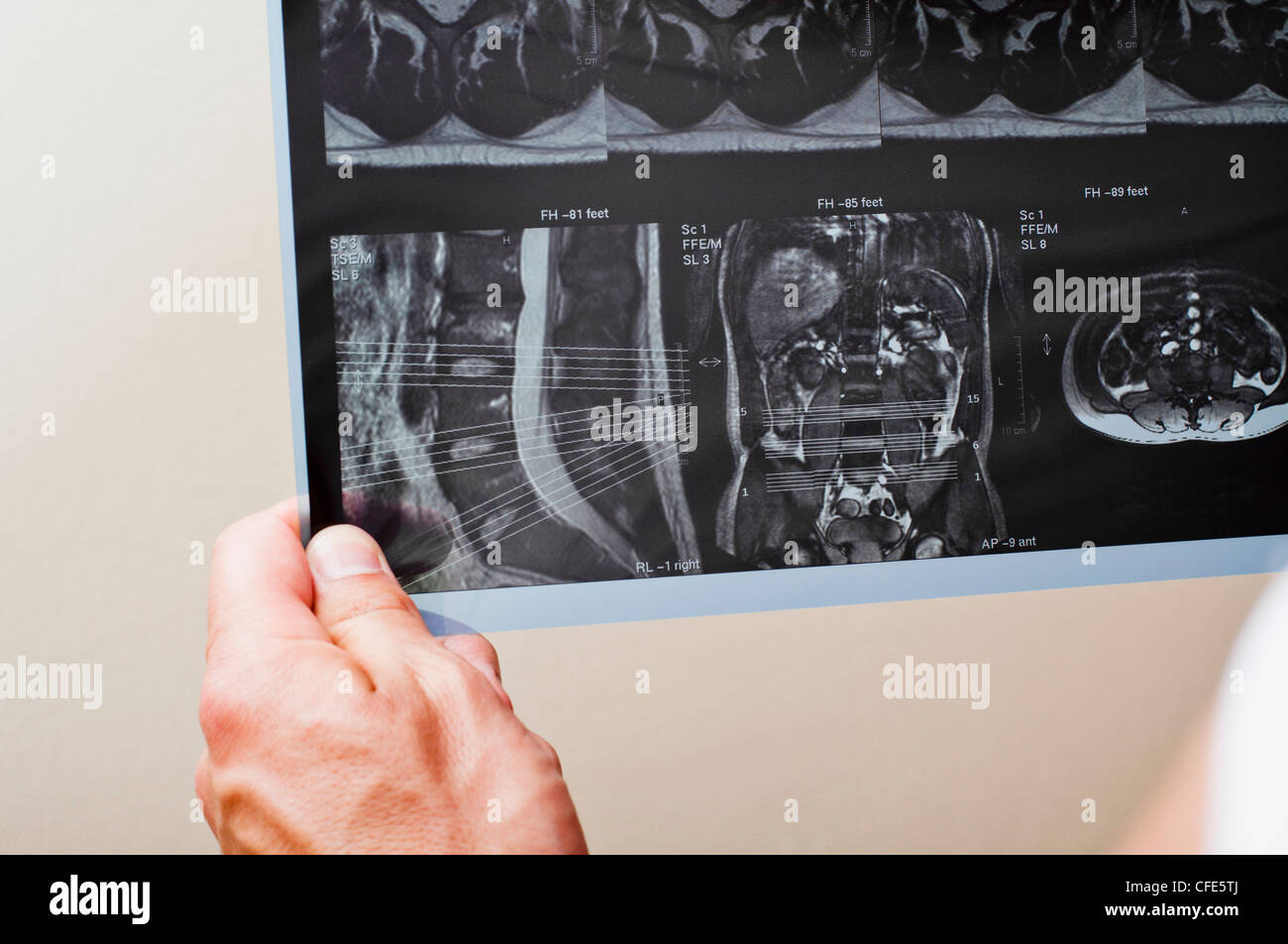 MRI of a patient with spinal pathology - Stock Image