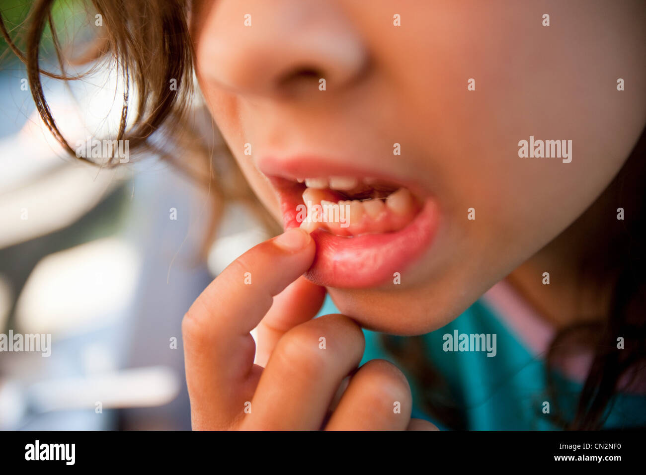Girl touching loose tooth - Stock Image