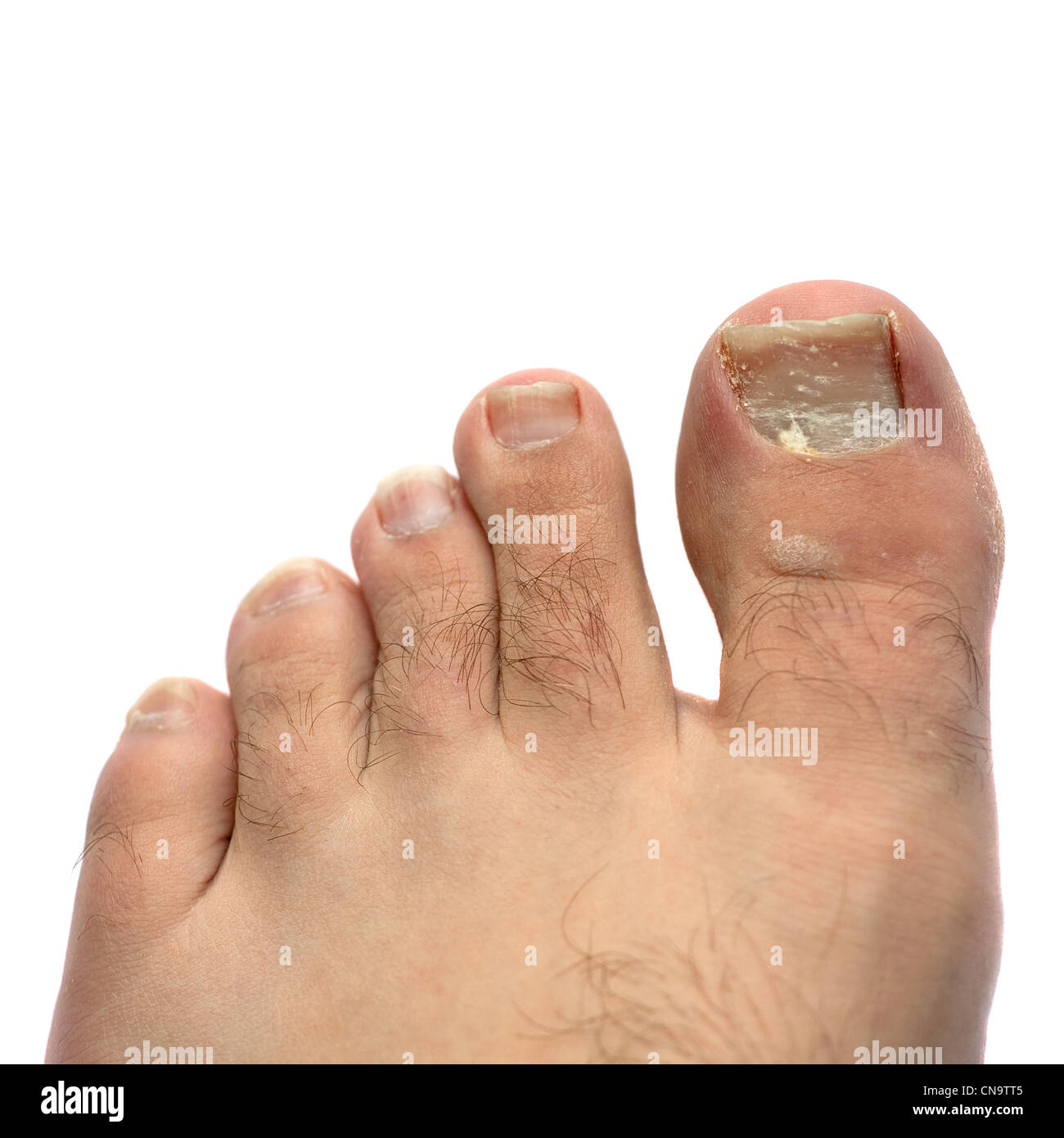 Closeup of a hairy human foot and toes with a cracked and peeling toe nail on the largest toe. - Stock Image