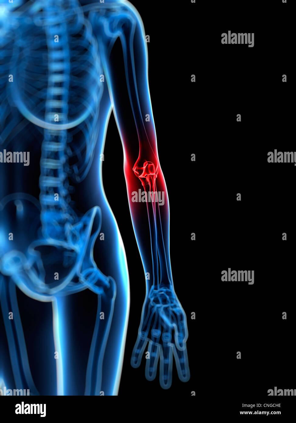 Elbow Bone Stock Photos & Elbow Bone Stock Images - Alamy