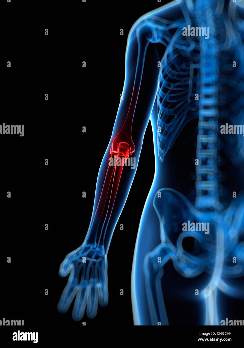 Human Elbow Joint Pain Computer Stock Photos & Human Elbow Joint ...