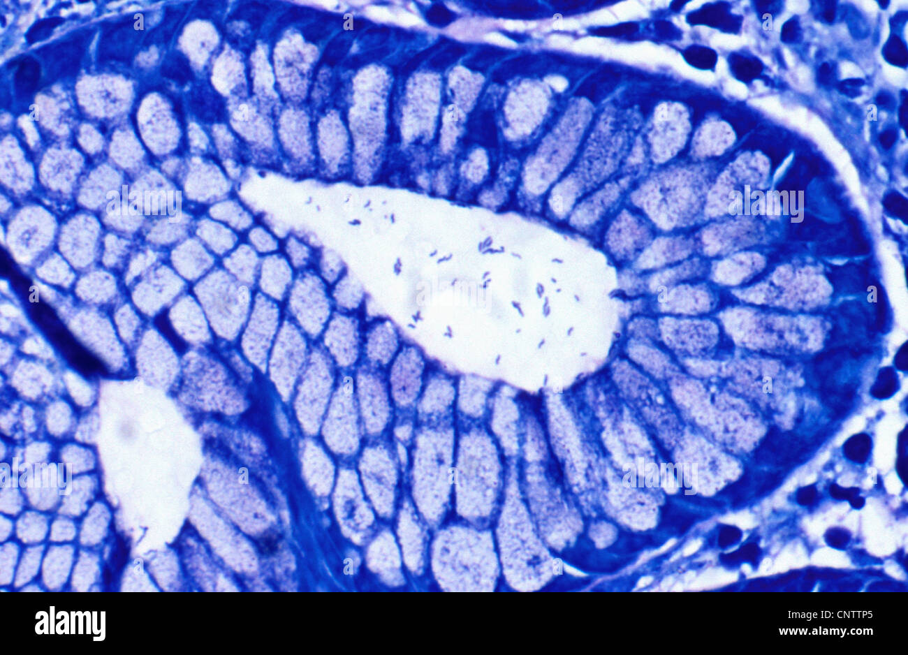 Helicobacter pylori in antral crypt - Stock Image