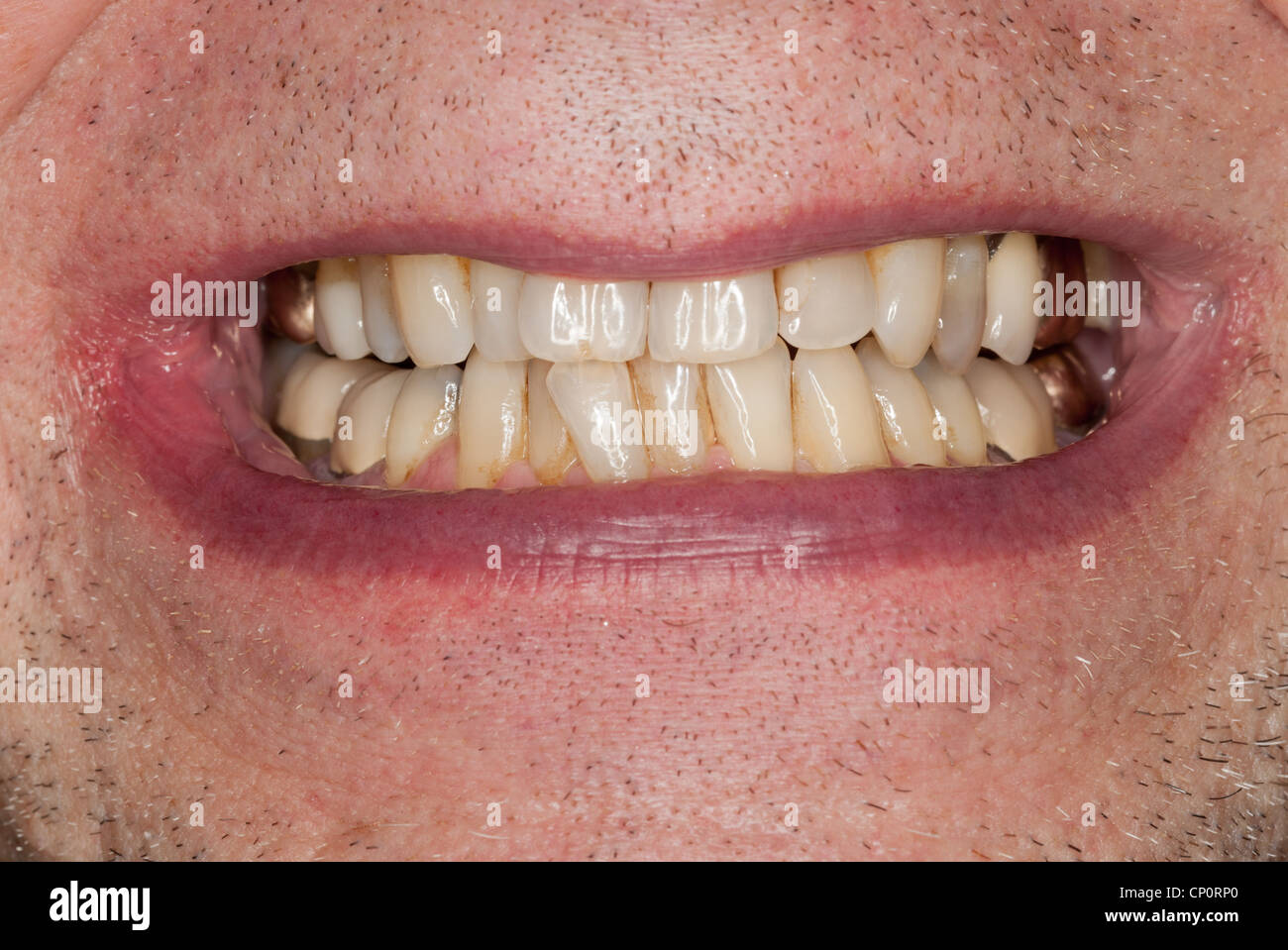 Close up macro shot of interior of mouth and fillings and crowns on teeth - Stock Image