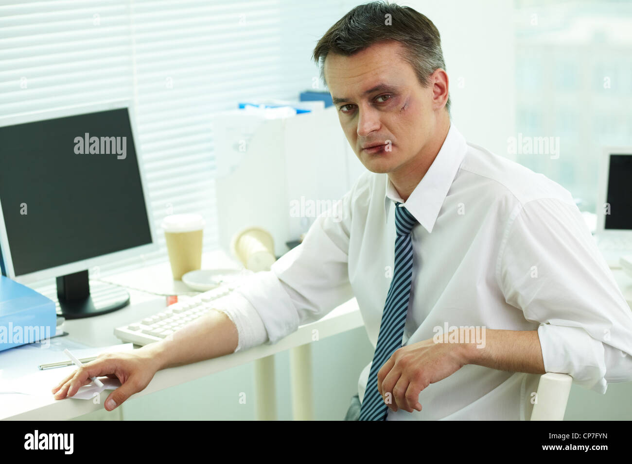 Portrait of businessman with bruised face looking at camera - Stock Image