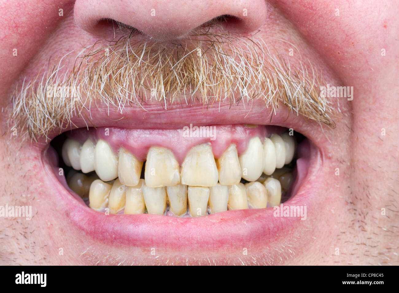 Yellow teeth are sick, diseased gums, red unshaved men's skin, gray mustache macro. The harm of alcohol and - Stock Image