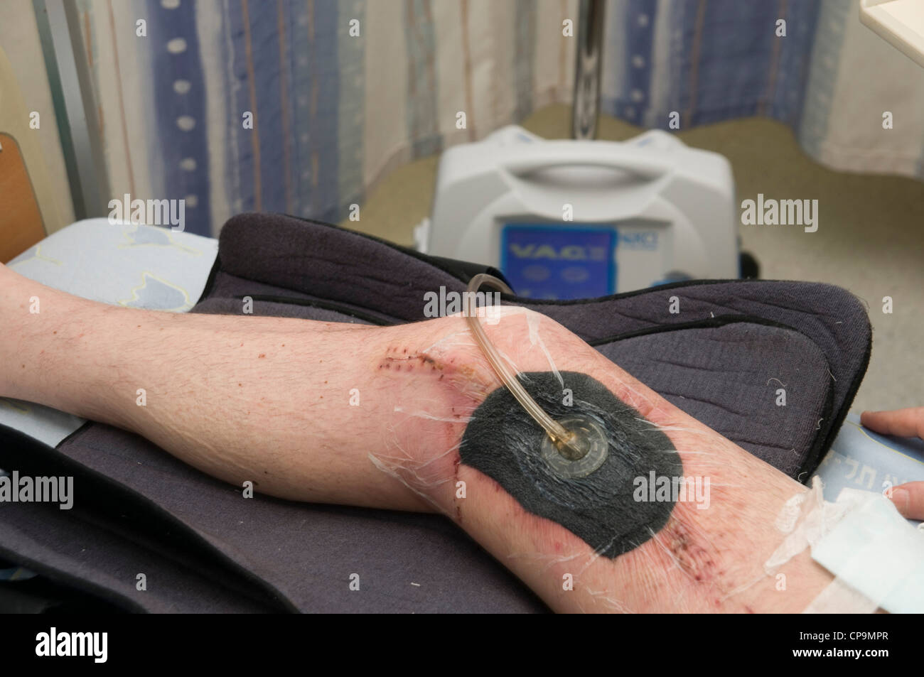 vacuum assisted closure vac or negative pressure wound therapy