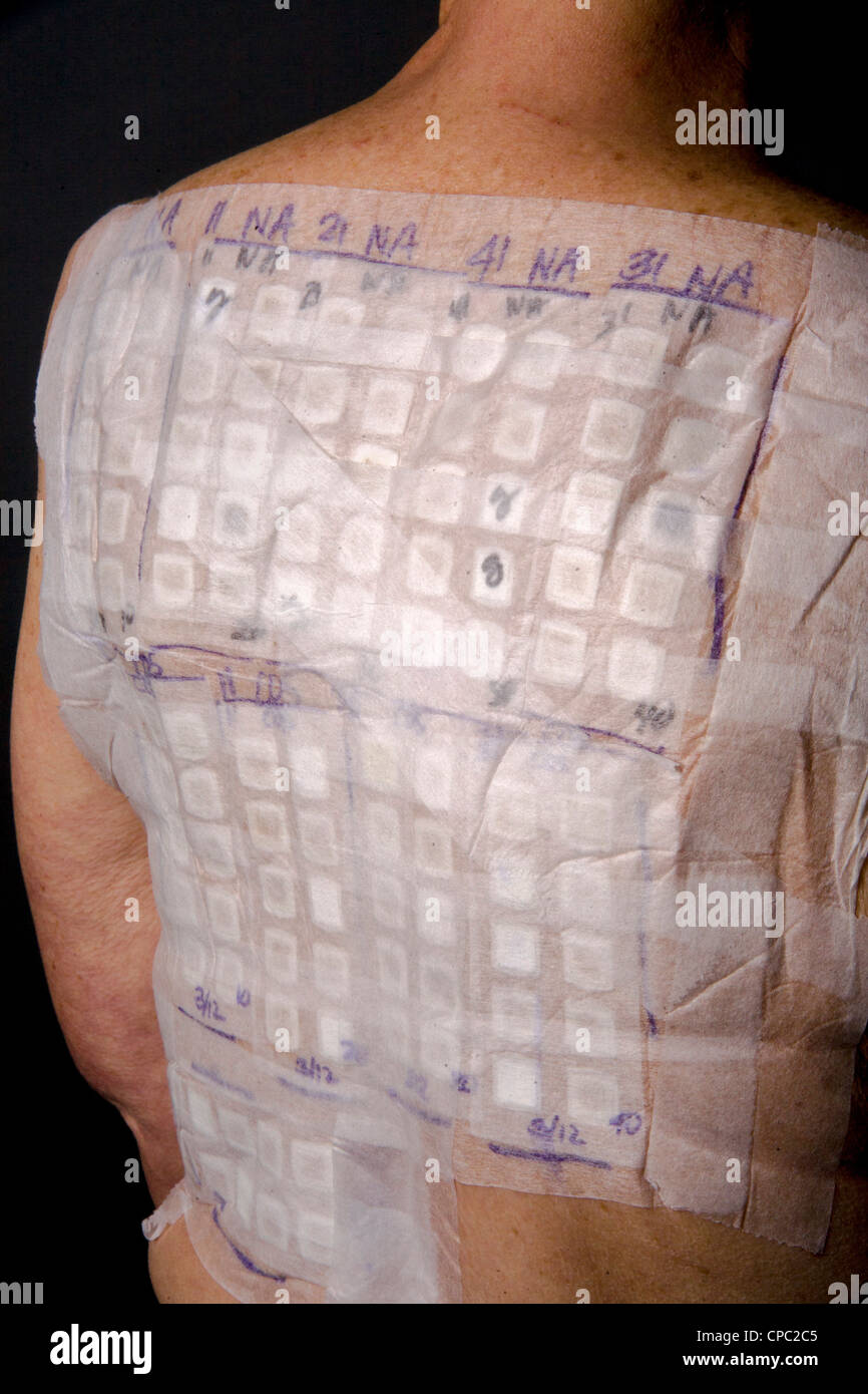 A woman patient's back is covered with the patches of an Chemotechnique Allergan Series to determine specific - Stock Image