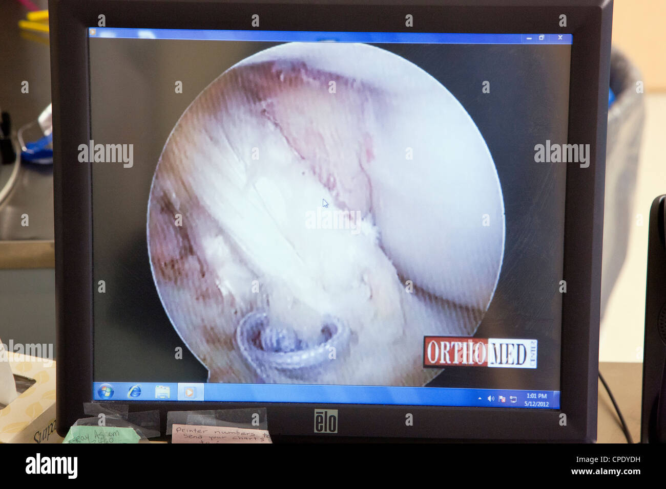 Arthroscopic knee surgery displayed on a hospital operating room computer monitor - Stock Image